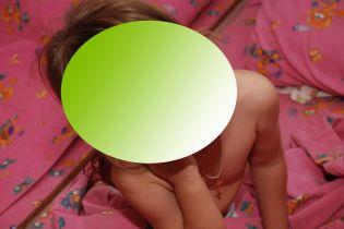 В детсаду Запорожья разгорелся скандал из-за фотографий обнаженных детей