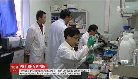 Японські вчені розробили тест, який може передбачити хворобу Альцгеймера
