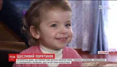 С зарубежного лечения вернулась девочка, которая подожгла себе платье во время игры со спичками
