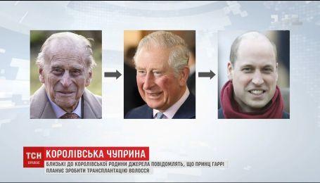 Не утраченные волосы: сколько в Украине стоит вернуть мужскую шевелюру
