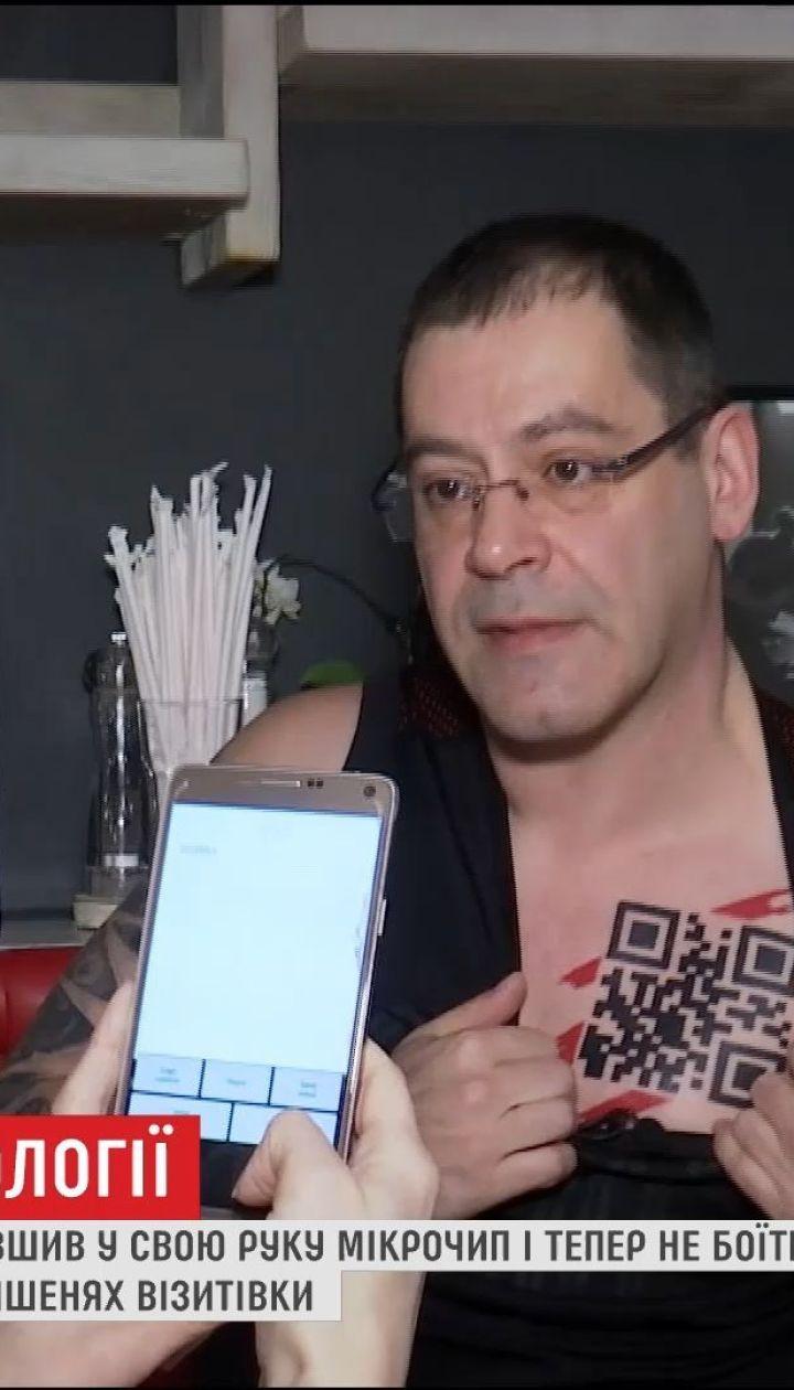 Рижанин вшил в руку микрочип, и теперь не боится потерять ключи или карточки