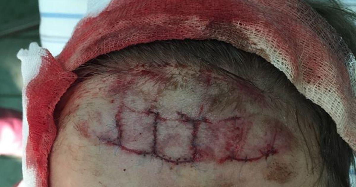 Пострадавший в киевском аквапарке ребенок получил глубокую рану черепа, врачи наложили 34 шва - мать