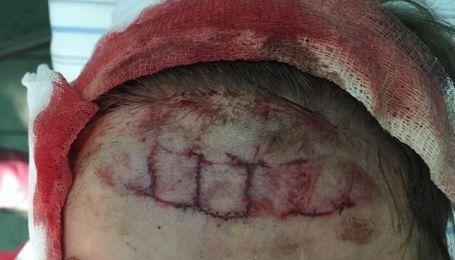 Постраждала у київському аквапарку дитина отримала глибоку рану черепа, лікарі наклали 34 шви - мати