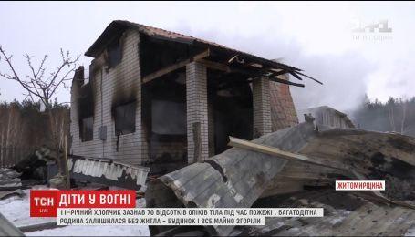 На Житомирщині спалахнув будинок із трьома дітьми в середині, яких залишили вдома самих