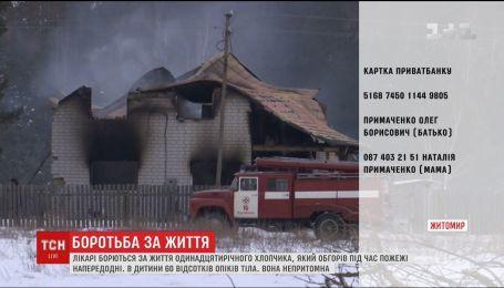 Мальчик, который обгорел во время пожара на Житомирщине, нуждается в помощи