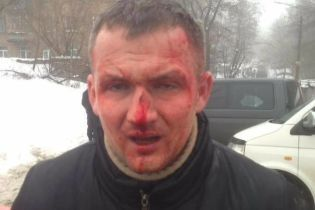 Побиття нардепа Левченка у Києві прокуратура розцінила як напад на держдіяча