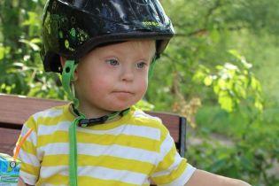 Всесвітній день людей із синдромом Дауна. Чому в Україні ніяк не змінять ставлення і до чого тут підручник Міносвіти