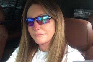 Что случилось с Кейтлин Дженнер: трансгендер показала фото с раной на лице