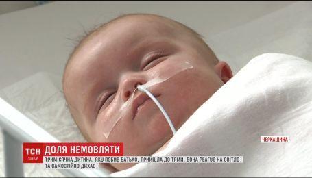 3-месячная девочка, которую избил отец в Черкасской облассти, пришла в себя