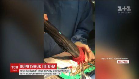 Австралійські ветеринари успішно прооперували пітона, який проковтнув капець