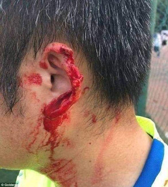 Футболіст без вуха