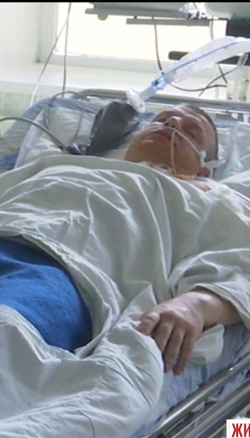 На Житомирщине депутат чудом выжил после обстрела неизвестным мужчиной