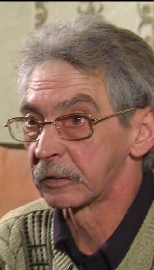 Житель Кривого Рога после операции в больнице три года страдал из-за забытого в носу бинта