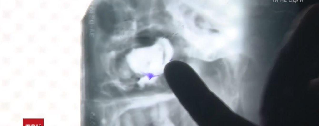 Медики Кривого Рога уверяют, что их пациент придумал забытый на три года бинт в носу