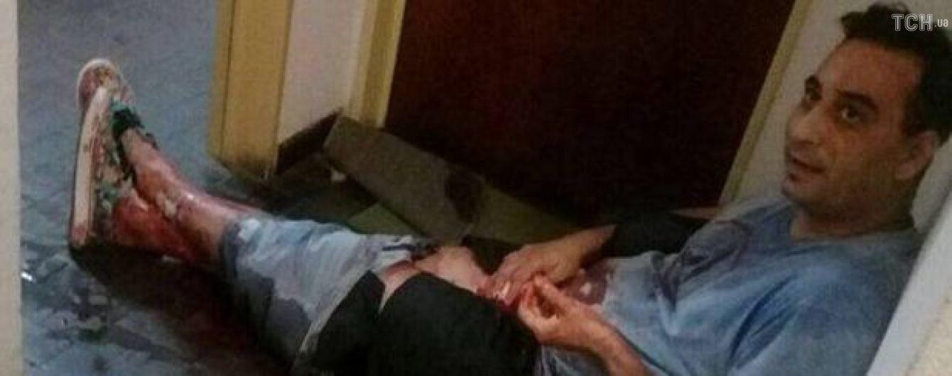 """""""Я зрізала член, але не повністю"""". Жінка позбавила чоловіка органа через відео"""