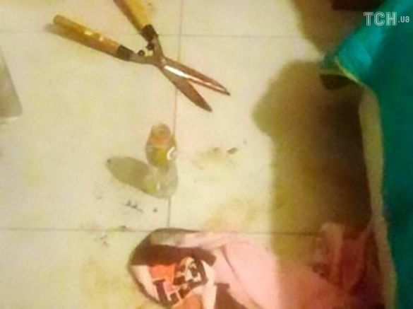 Дівчина відрізала пеніс свого хлопця садовими ножицями