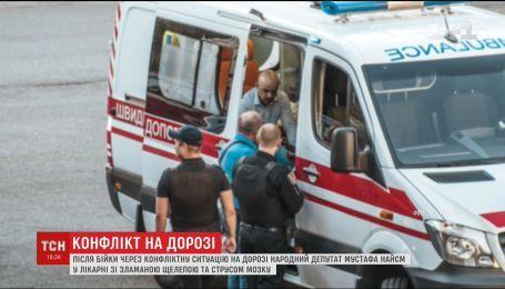 Конфлікт на дорозі: депутата Мустафа Найєма шпиталізували зі зламаною щелепою і струсом мозку