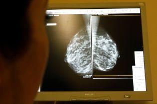 Рак – не приговор: в Днепре онкобольных успешно лечат с помощью изобретения Нобелевских лауреатов