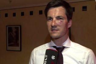 Новоизбранному мэру немецкого города выбили зуб и сломали нос