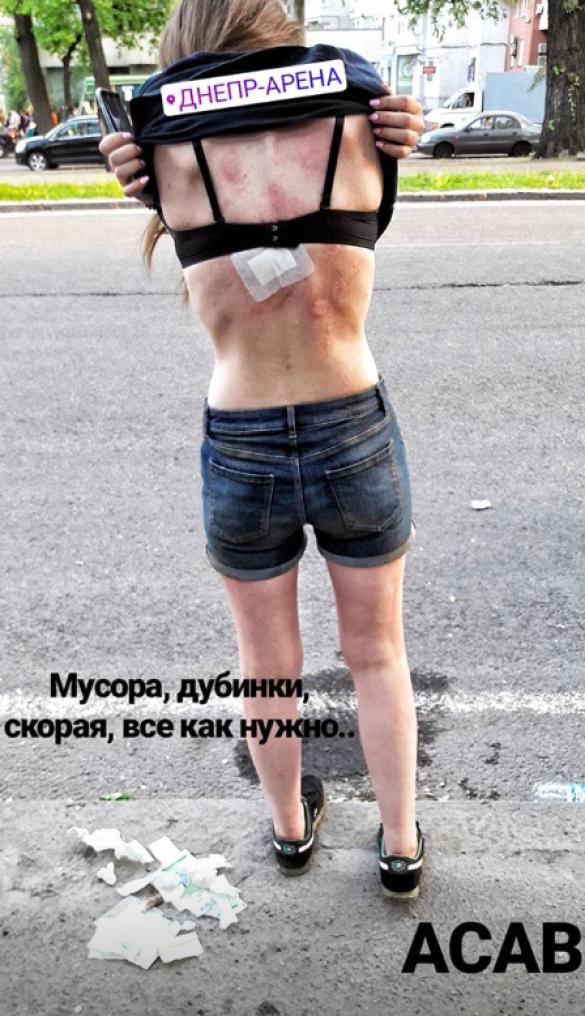 Побита дівчина на марші ультрас