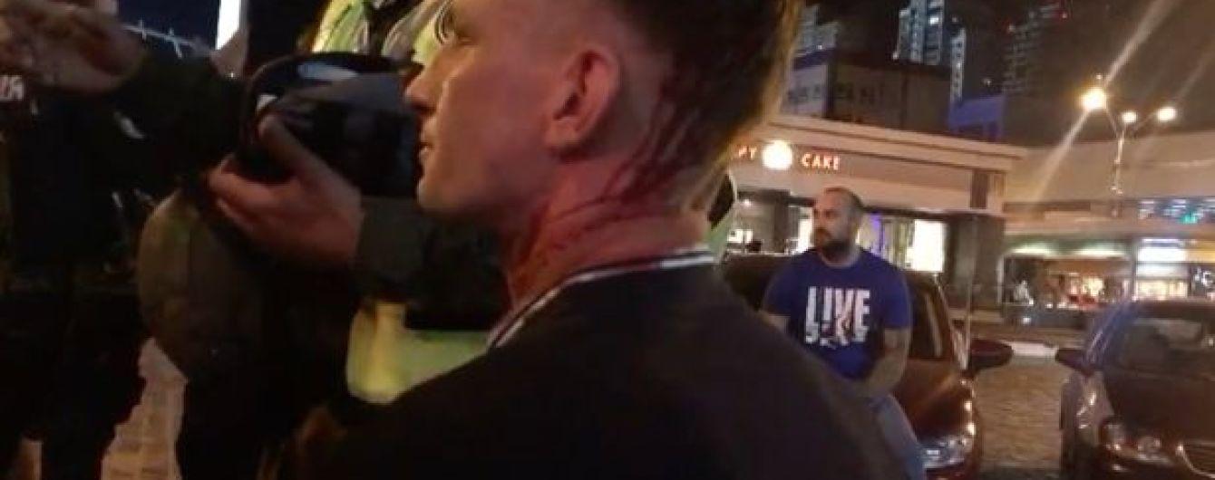 Правоохранители квалифицировали драку с английскими фанатами как хулиганство