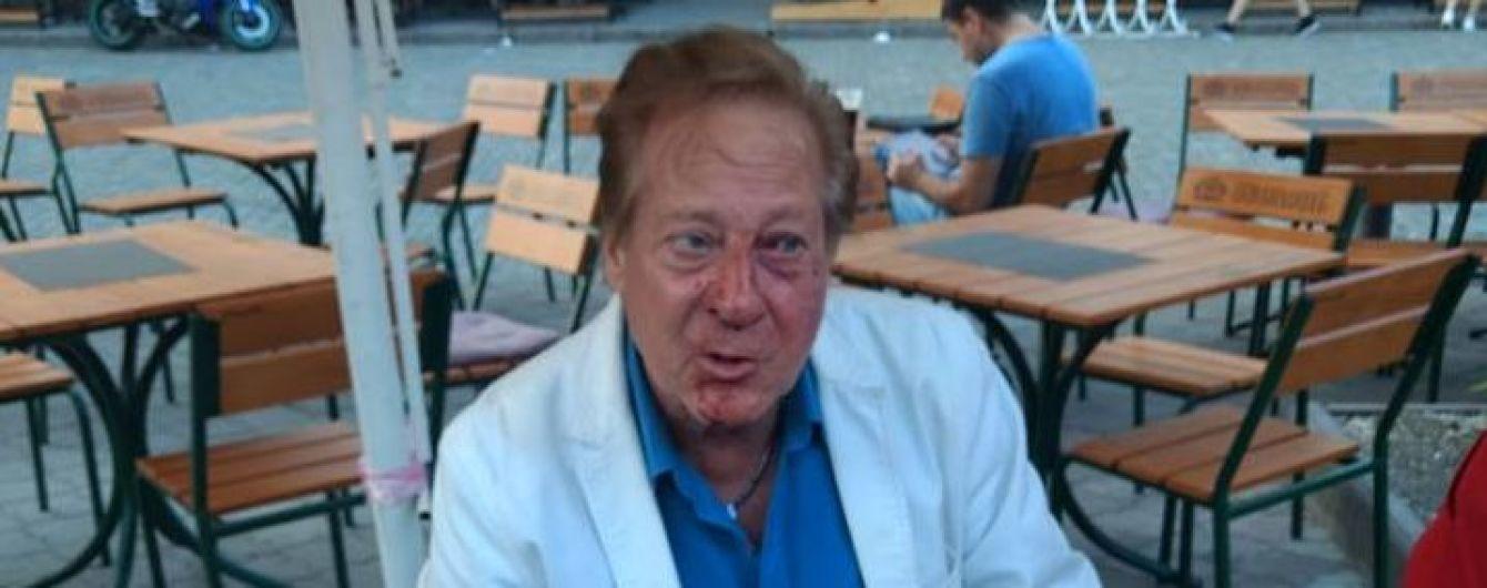 В центре Одессы избили известного американского певца и ученика Фрэнка Синатры