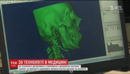 Технологии 3D-печати в медицине. Как на специальных принтерах изготавливают части лица