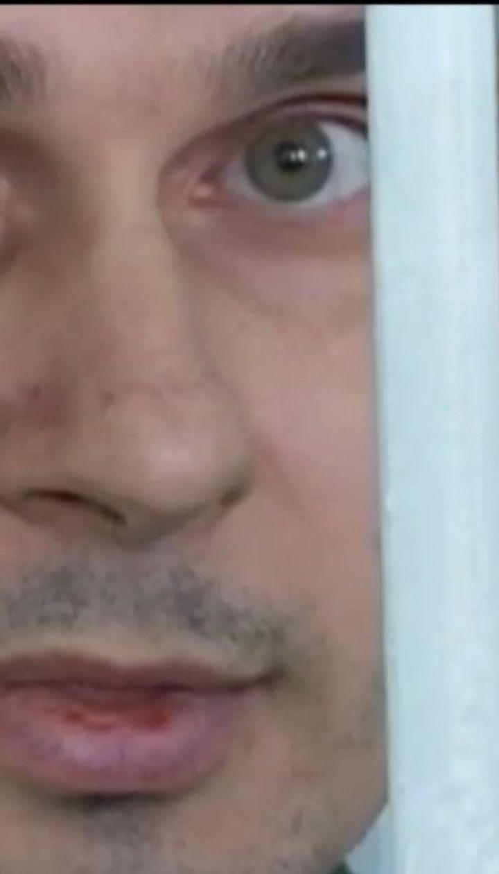 РФ приховує справжній стан здоров'я утримуваних українців – Людмила Денісова