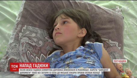 В Кременчуге спасают жизнь ребенку, которого укусила гадюка