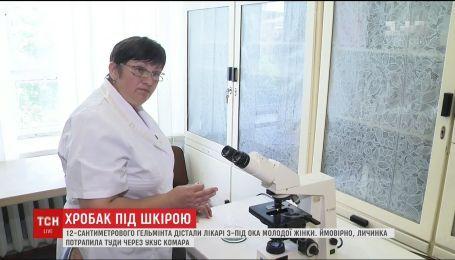 В Кременчуге врачи из глаза женщины вытащили 12-сантиметрового паразита