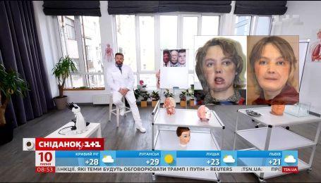 Как проходит операция по пересадке лица - Врач Валихновский