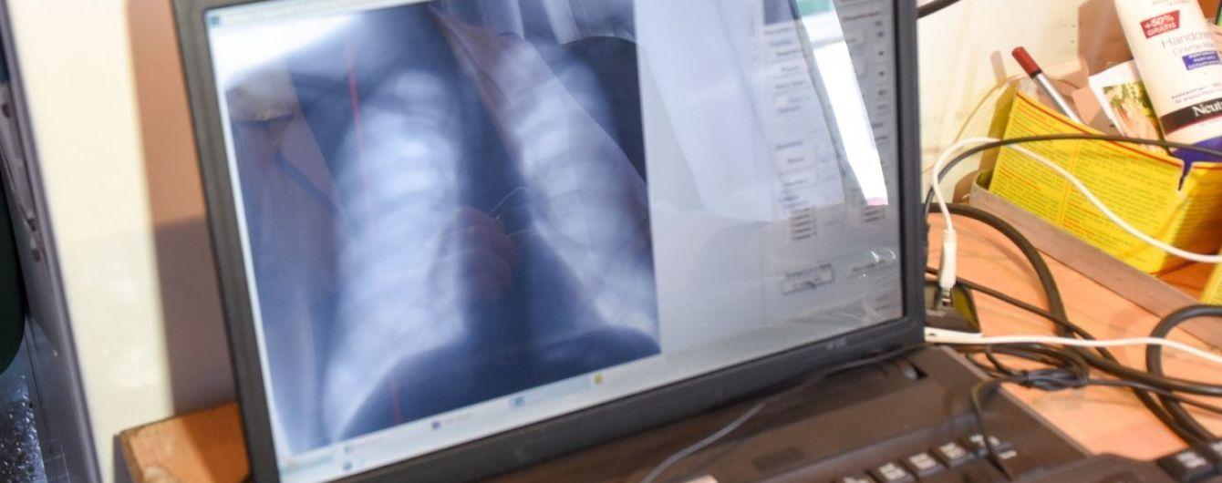 Минздрав создал онлайн-анкету для проверки на туберкулез