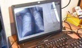 Чверть землян хворіє на туберкульоз - ВООЗ