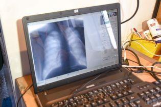 Туберкулез ежегодно убивает 4 тысячи украинцев