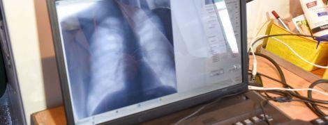 Четверть землян болеет туберкулезом - ВОЗ