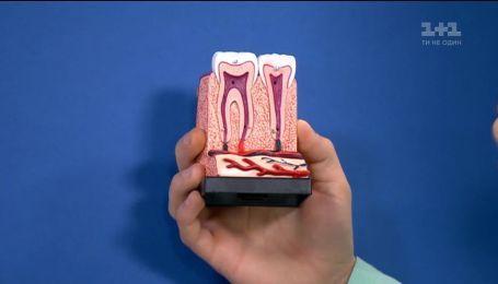 Які засоби для відбілювання зубів кращі