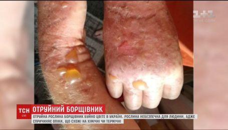 В Украине быстро разрастается опасное для человека растение - борщевик