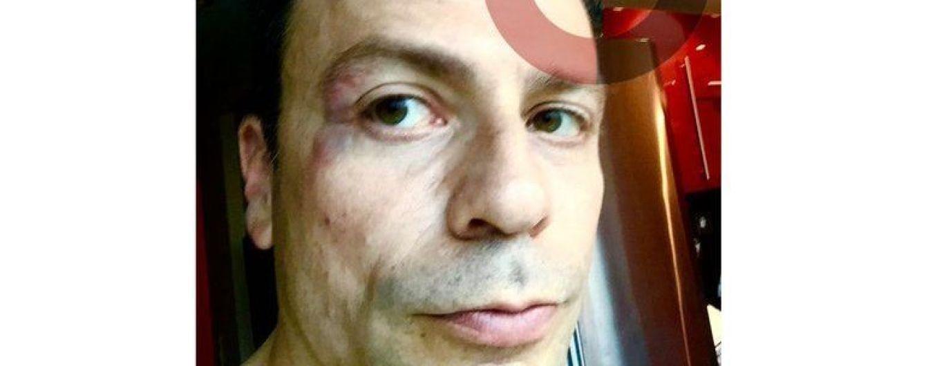 Экс-футболист сборной России ударил журналиста в лицо
