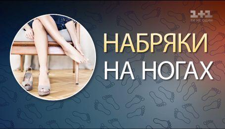 Чому набрякають кінцівки і як це вилікувати - лікар Ростислав Валіхновський