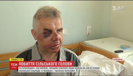 Под Киевом неизвестные 2 часа издевались над семьей сельского головы