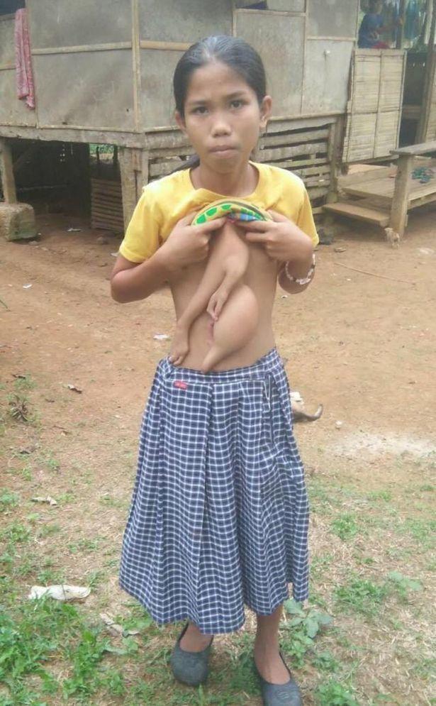 Дівчинка з сіамським близнюком-паразитом