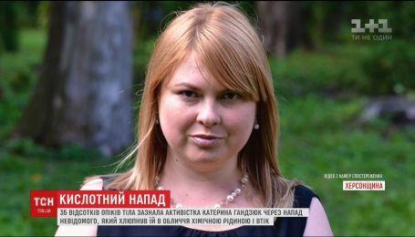 Кислотой в лицо. Подробности нападения на известную активистку в Херсоне
