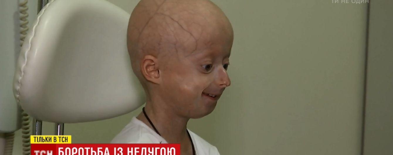 Українські медики провели унікальну операцію дівчинці, організм якої стрімко зістарівся до 60-річного віку