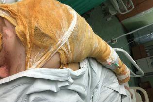 Активистку Гандзюк, которую облили ядом в Херсоне, перевезут в Киев - СМИ