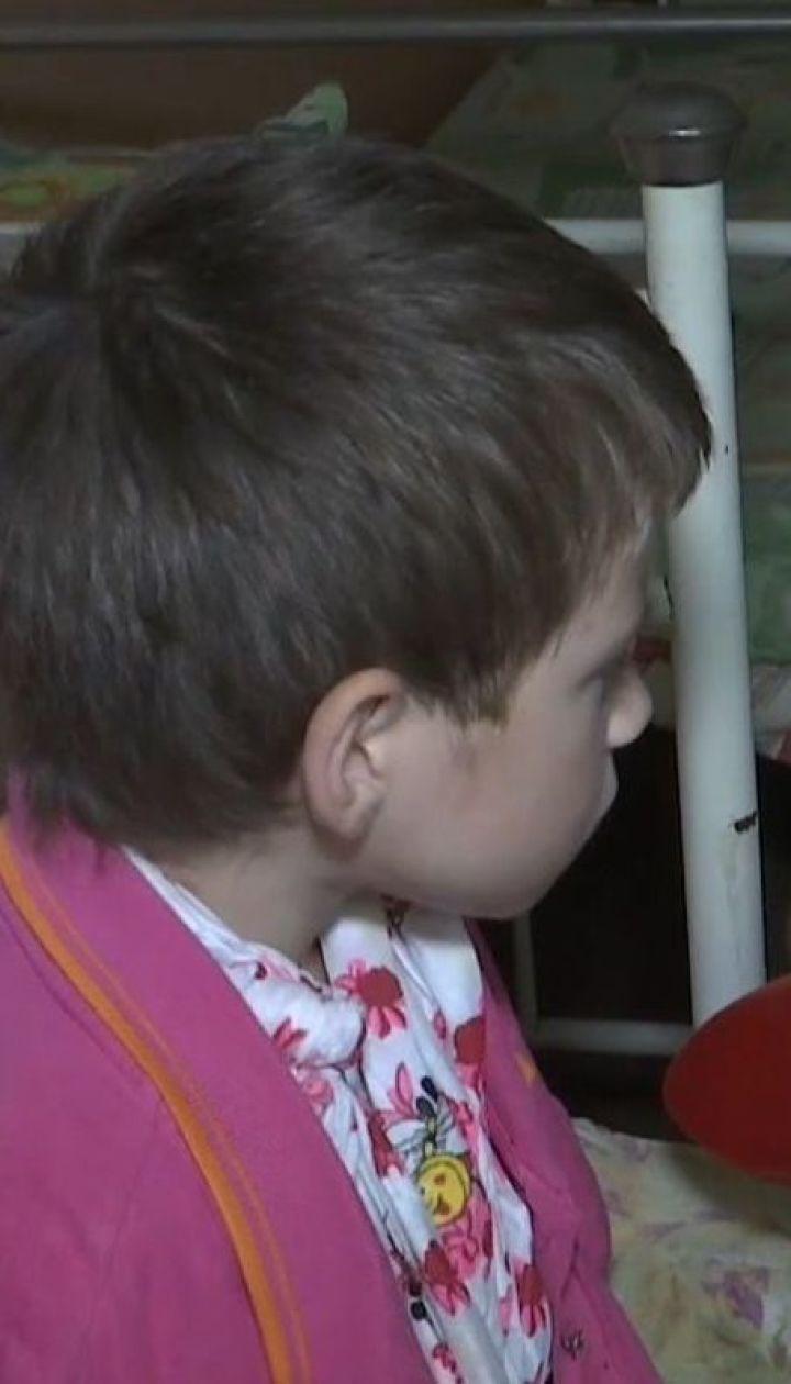 Воспитание кулаками. В Житомирской области отец сломал руку своей восьмилетней дочери