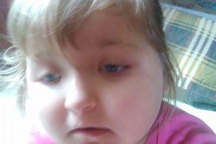 5-річна Олександра сподівається на допомогу небайдужих