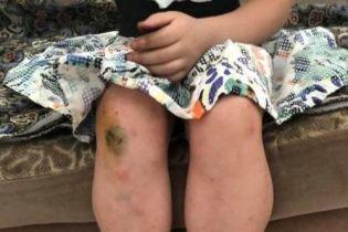 В Одесі в притулку вихователі побили дітей – поліція перевіряє інформацію