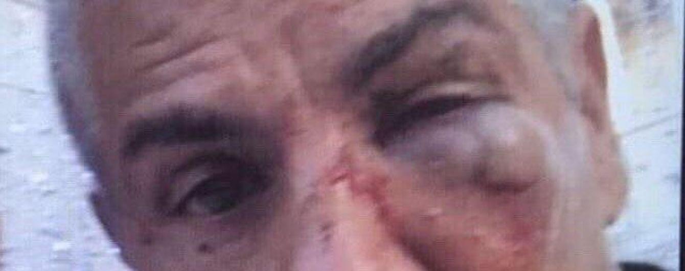 """Звезда """"Такси"""" Насери может потерять зрение после драки в московском баре"""