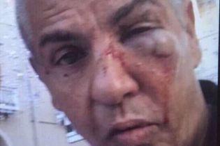 """Зірка """"Таксі"""" Насері може втратити зір після бійки у московському барі"""