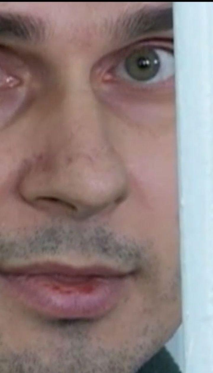 Сестра Сенцова повідомила про погіршення стану політв'язня
